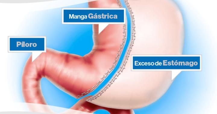 Operación de manga gástrica o cirugía tubular.
