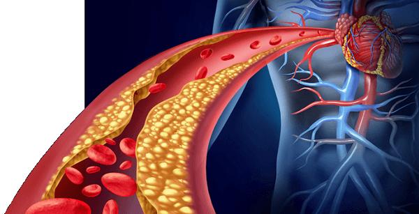 Arteriosclerosis y colesterol