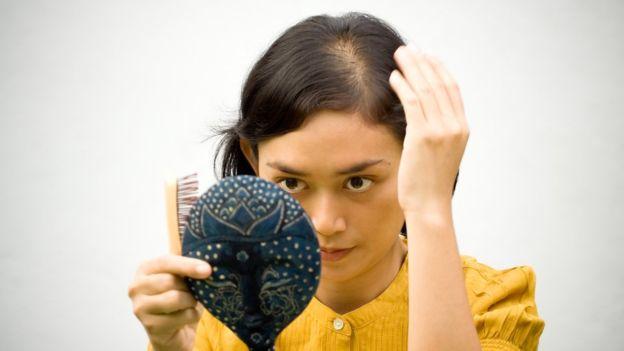 ¿Perder peso implica perder pelo?