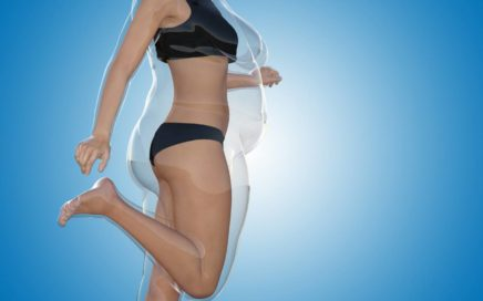 ¿Se puede engordar después de la reducción de estómago