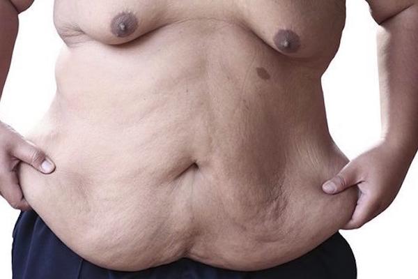 Sobrepeso y piel colgante