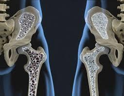 Los efectos secundarios de la cirugía bariátrica