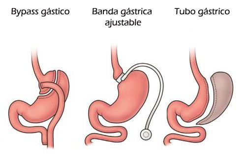 Tipos de operación bariátrica